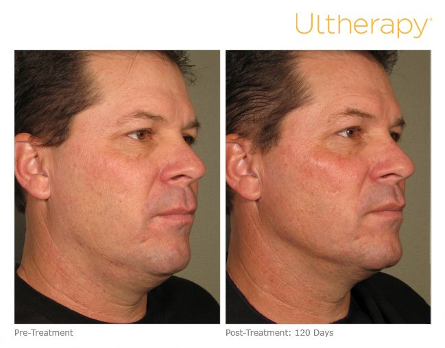 Ultherapy in Clarksville, AR