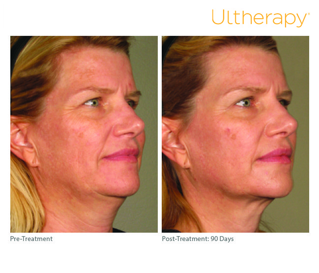 Ultherapy in Conway, AR