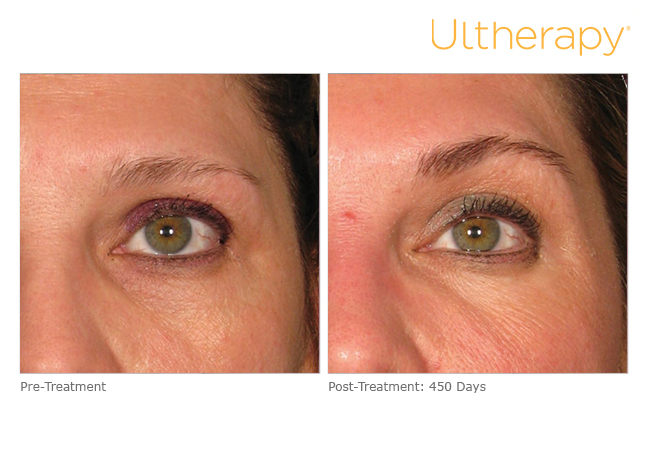 ultherapy Bigelow, AR