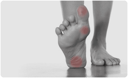 Treatment for common foot problems