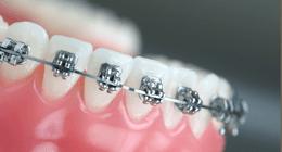 apparecchi ortodonzia