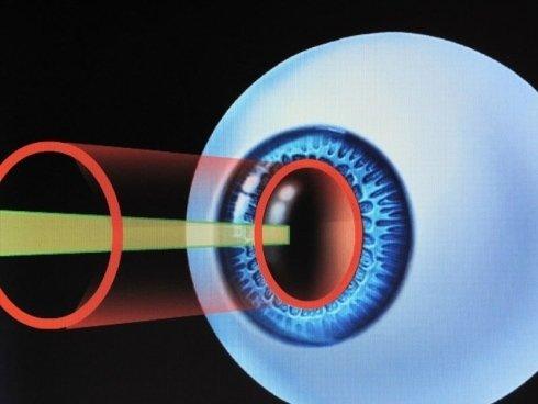 sistema micromovimenti eye tracker
