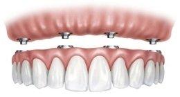 odontoiatria conservativa, endodonzia, implantologia