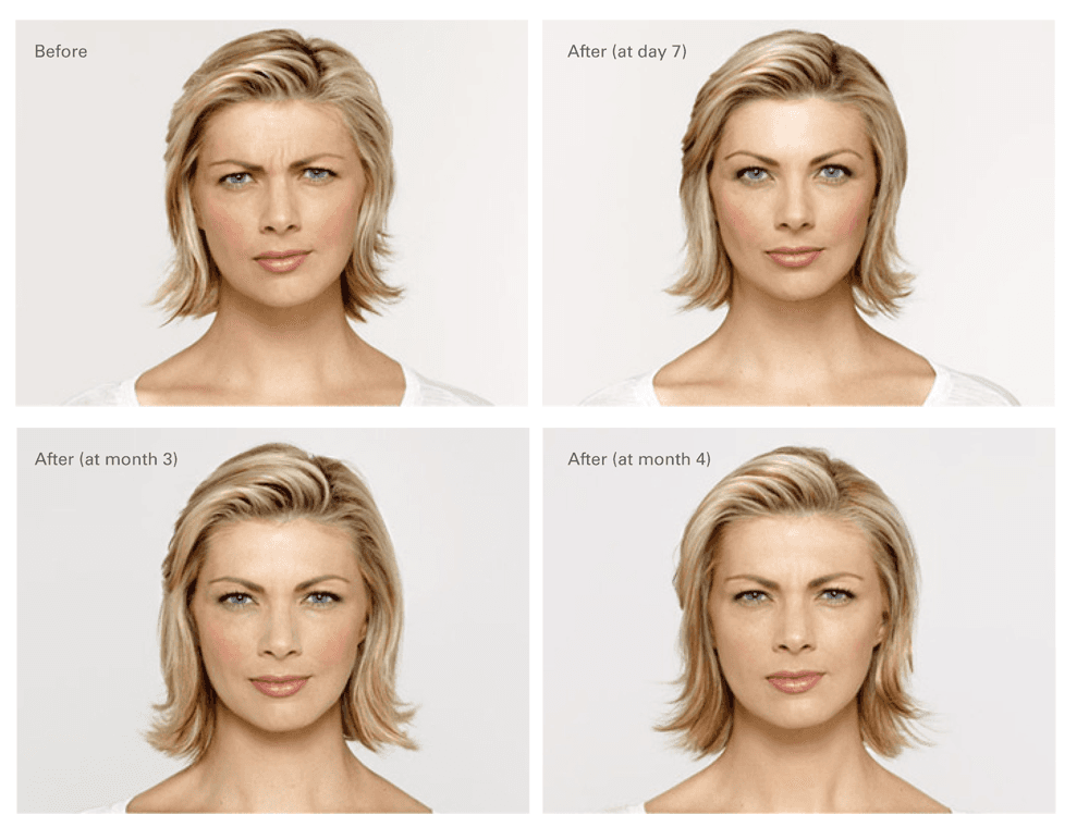 Botox Treatment San Angelo, TX