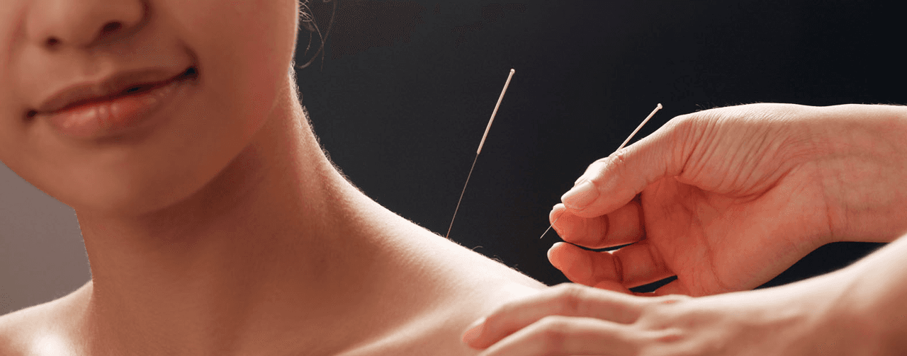 needle treatment