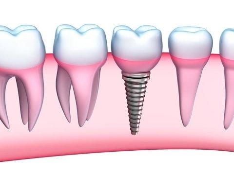 implantologia fissa e mobile