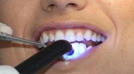 pulizia dei denti, sbiancamento dentale, cura delle carie