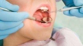 odontoiatria per bambini, protesi dentarie, otturazioni