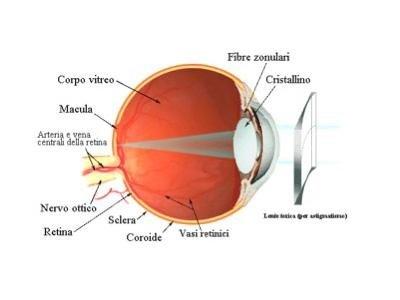 correzione astigmatismo