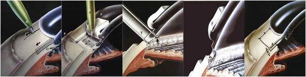 intervento oculare