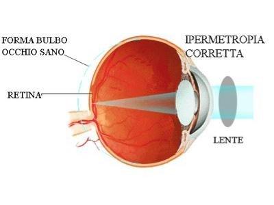 sintomi ipermetropia