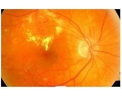 complicazioni oculari