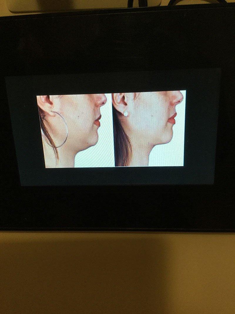 due immagini di una donna vista di profilo prima e dopo un trattamento