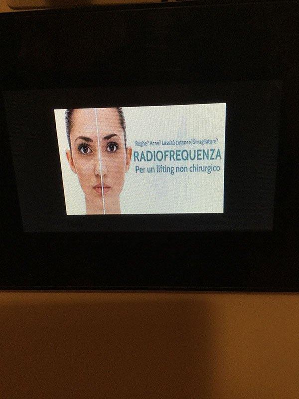 il volto di una donna diviso a metà che denota le differenze tra prima e dopo un trattamento e sulla destra la scritta Radiofrequenza, per un lifting non chirurgico