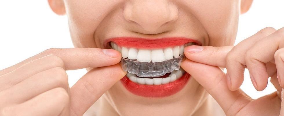 apparecchi ortodontici invisibili