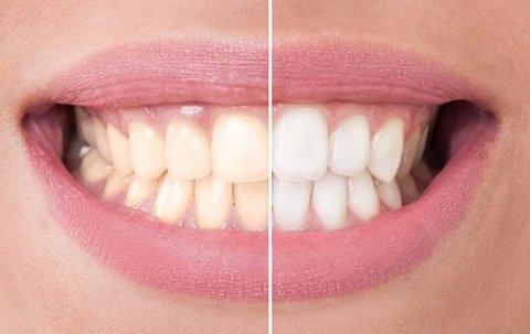 cosmetica dentale