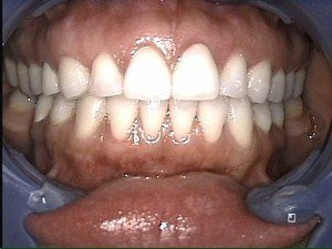 Teeth With Dental Veneers