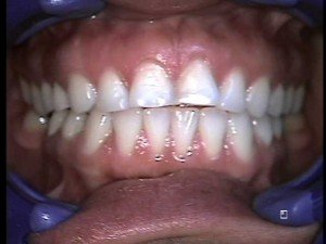 Teeth Without Dental Veneers