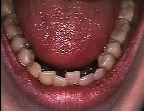 Kathryn Lower Arch Before Invisalign