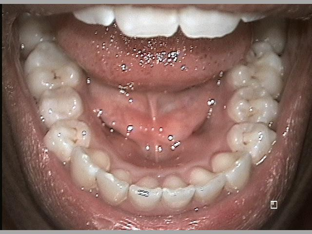 Lower Arch After Invisalign