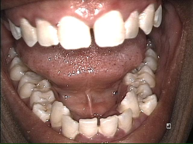 Top and Bottom Teeth Before Invisalign
