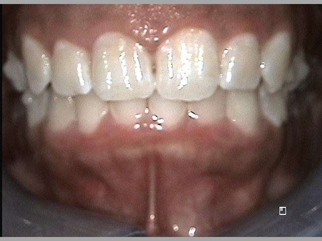 Front Teeth After Invisalign