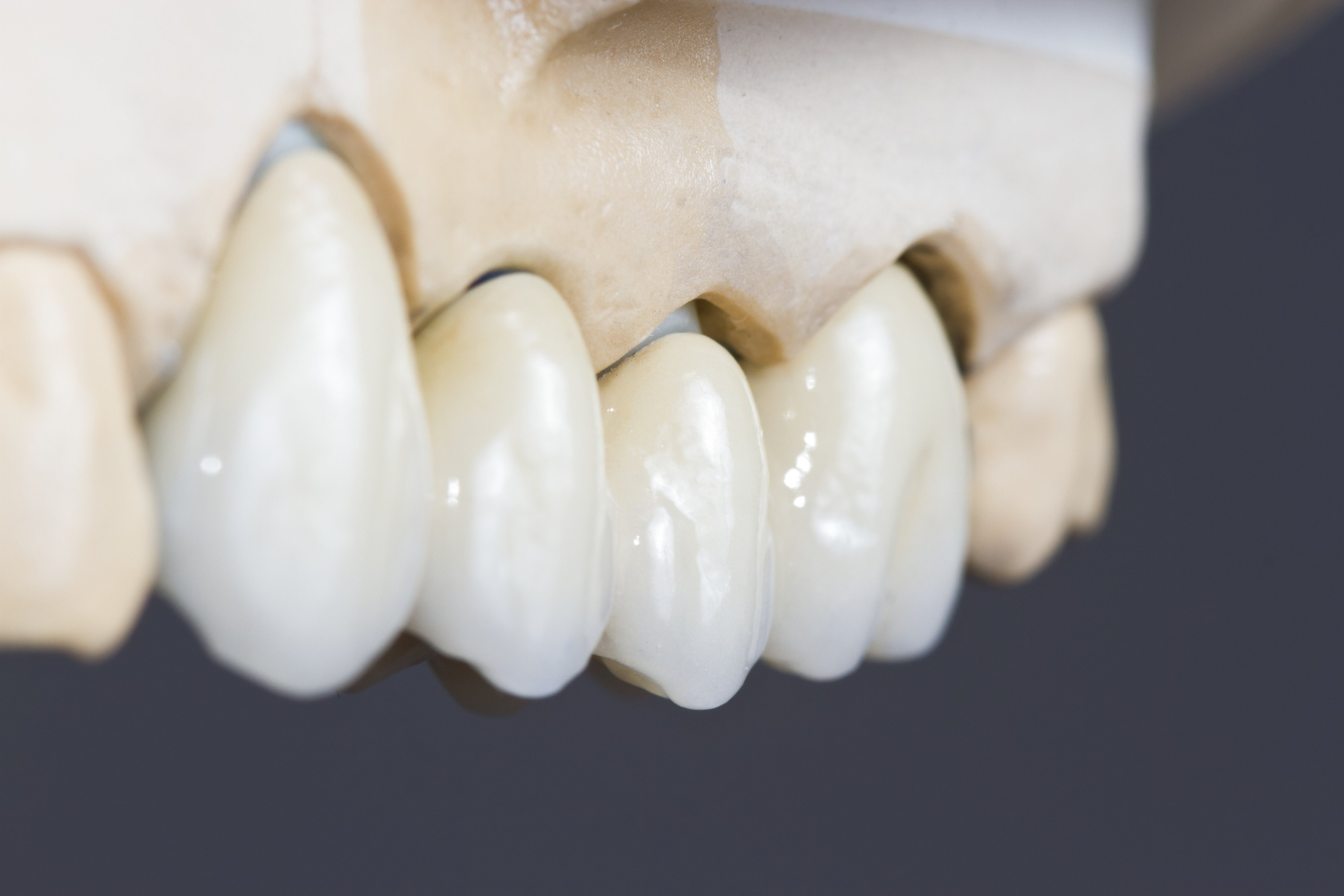 Model of Gums and Teeth