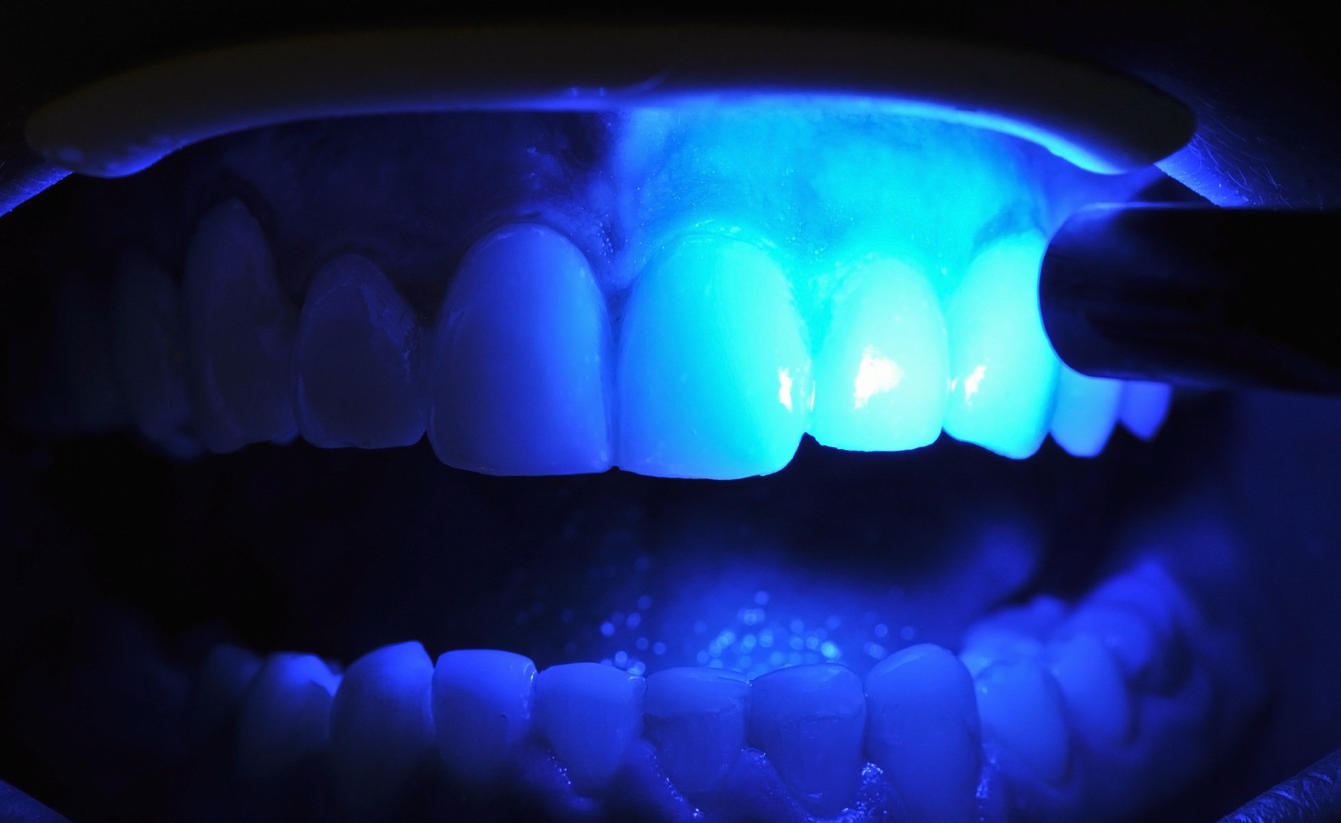 Ultraviolet Light Shining on Person's Teeth