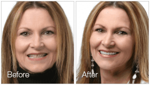 Female Dental Veneers Patent Before and After Photos