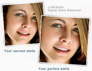 LUMISmile Digital Smile Makeover Photo of Girl Before and After