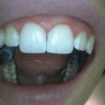Photo of Teeth After Composite Was Placed