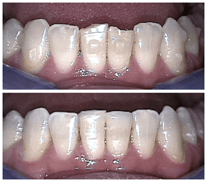 Before and After Photos of Teeth with Dental Bonding