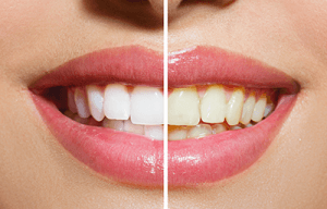 White vs Yellow Teeth