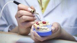 dentista, odontoiatri, allineamento denti bambino