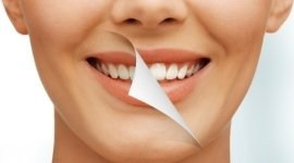 igiene dentale, pedodonzia, cure estetiche