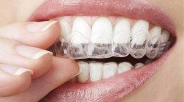 allineamento denti bambino, assistenza dentistica, igiene dentale