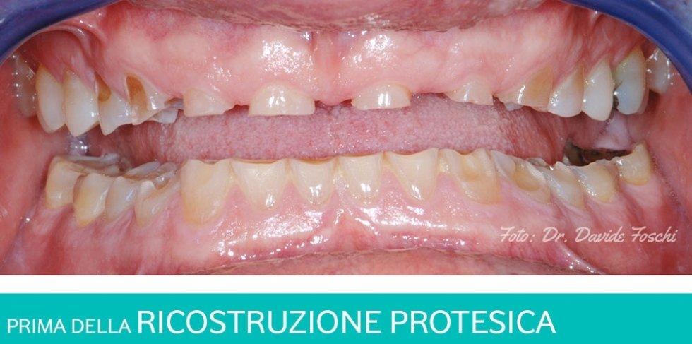 ricostruzione protesica