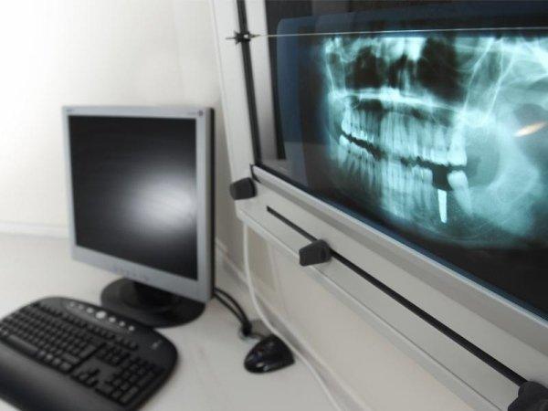 ortodonzia cad cam