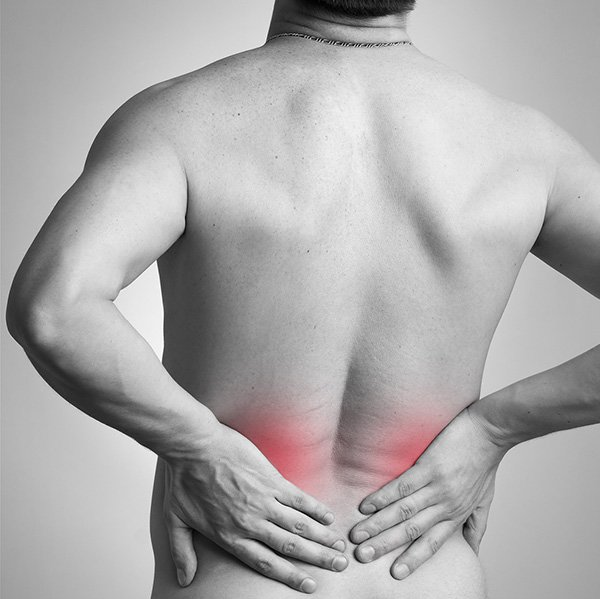 General Back Pain