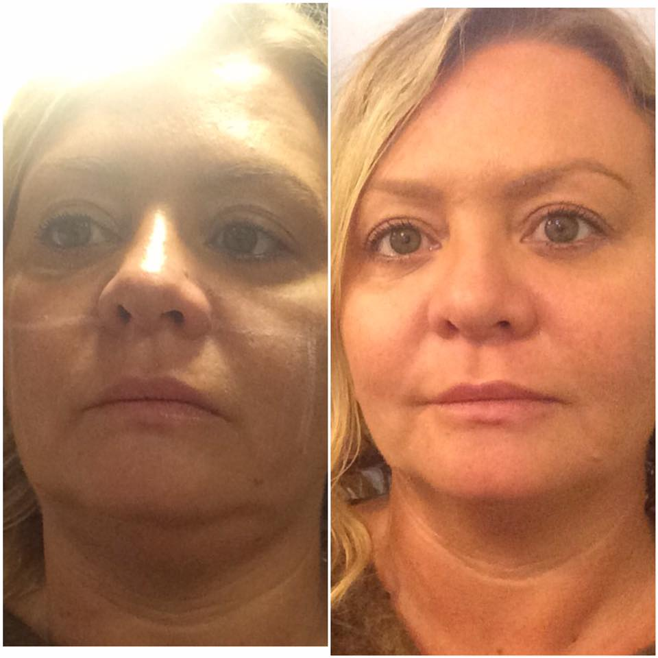 Face lift treatment result