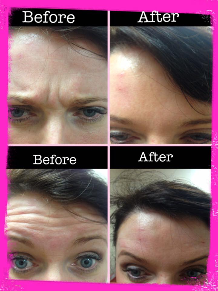 Result of non surgical treatment
