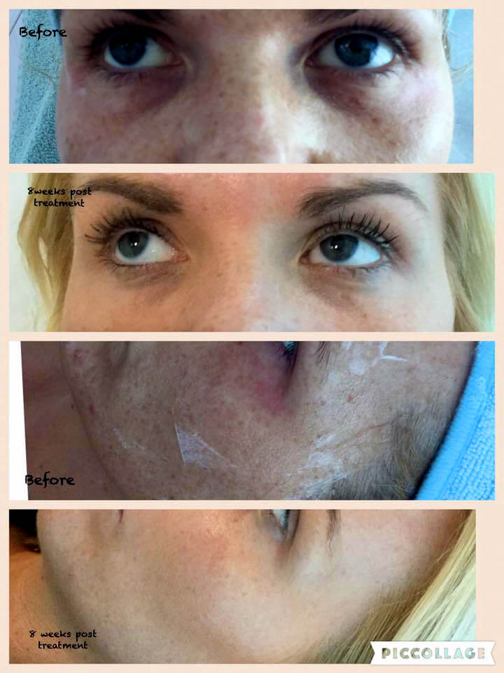 Vampire face lift treatment result