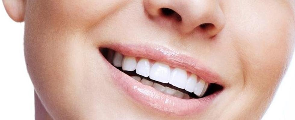 Dentista Vicenza