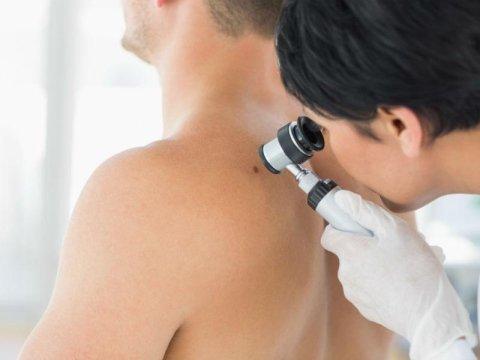 Consulti dermatologici
