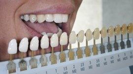 denti sani, prestazioni efficaci, odontoiatria conservativa