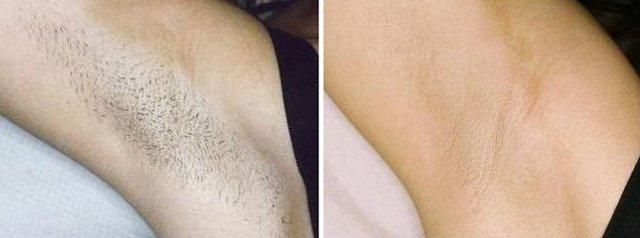 Laser Hair Removal Jalandhar Punjab India At Affordable Cost