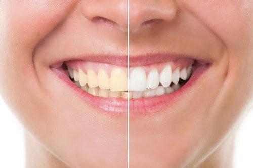Teeth Whitening Troy, NY