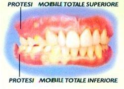protesi-mobile-totale
