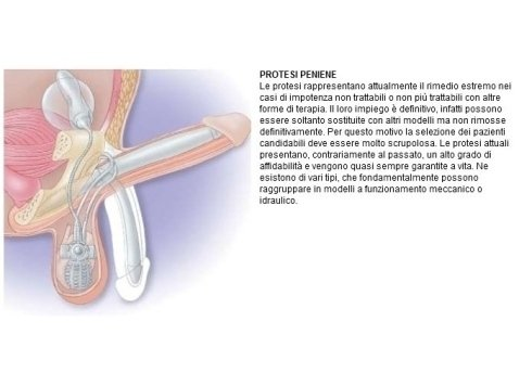 protesi peniene