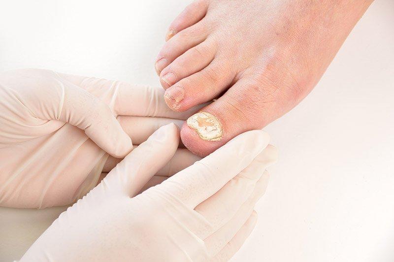 Piede con patologia delle unghie